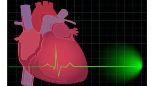Statins May Help Heart in Some Young Stroke Patients