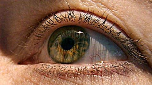 gene therapy for blindness