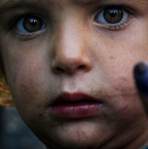 Peshawar Vaccinate Children Against Polio