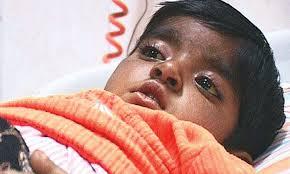 Three Children Die of Gastro in Dadu, Over 30 Others Hospitalised
