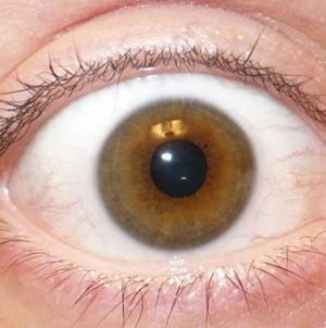 US Woman Who Gouged Her Eyes Sues Over Viral Photo