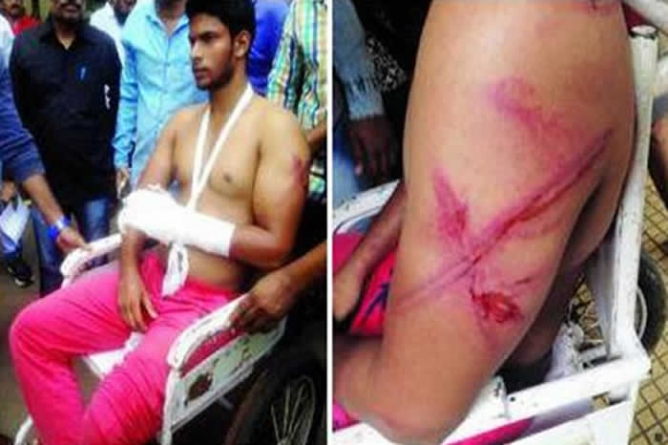 Indian police thrash two Muslim youths, ask them to go to Pakistan