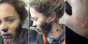 Woman Suffers Burns As Headphone Batteries Explode