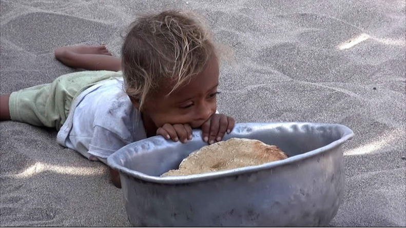 A Cry For Help: Millions Facing Famine In Yemen