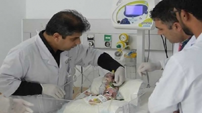 Conjoined Twin Girls Separated in Afghan First: Doctors