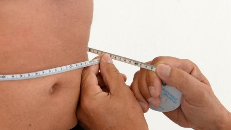 Does Midlife Obesity Protect Against Dementia?