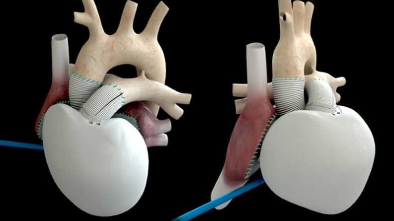 France's 2nd Artificial Heart Recipient says 'Recovered'