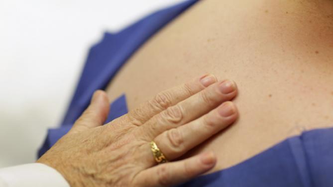 risk of skin cancer